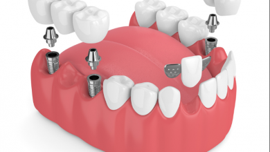 Dental Implant Bridges